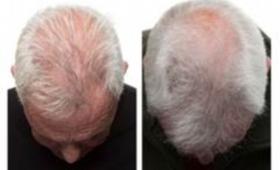 【朗報】ついに脱毛に100%の効き目?の「毛生え薬」が登場!色々な意味で話題に