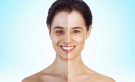 「痩せすぎモデル」の防止策、Photoshopで加工された写真をゲッティイメージズが禁止へ