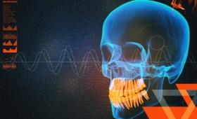 慢性偏頭痛と顎の意外な関係。顎関節症の人は偏頭痛になりやすい